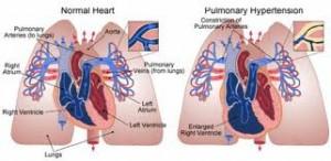hypertensionimage